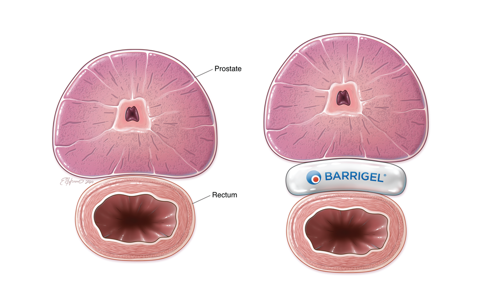 BARRIGEL Product Placement, Axial View