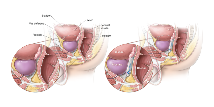 BARRIGEL Product Placement, Sagittal View