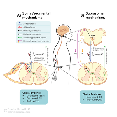 Spinal Cord Stimulation Mechanisms