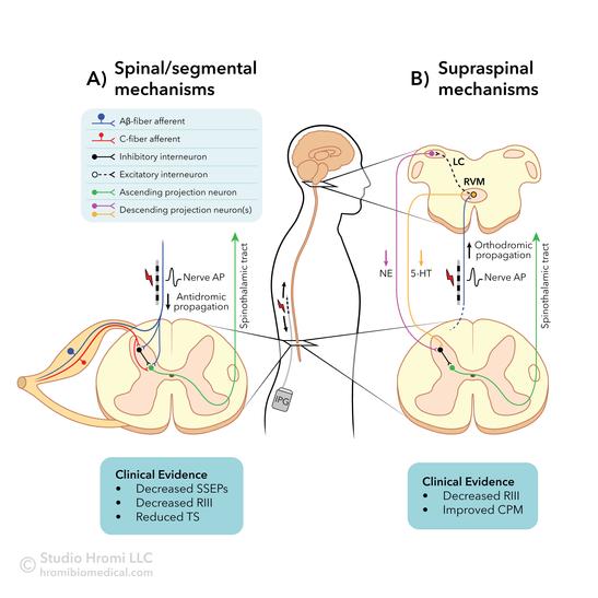 Spinal Cord Stimulation Mechanisms