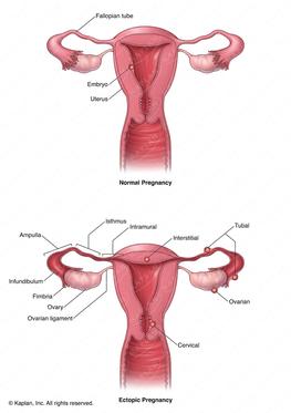 Normal Uterus and Uterus with Ectopic Pregnancies