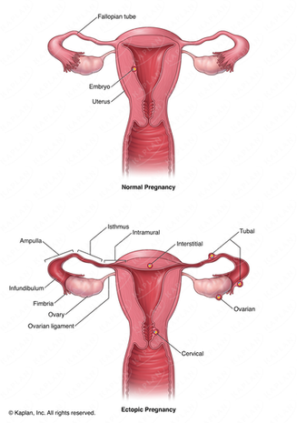 Normal Uterus and Uterus with Ectopic Pregnancies