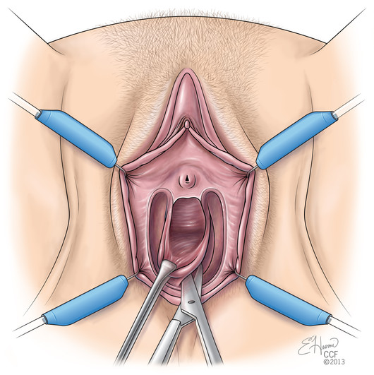 Vestibulectomy Surgery