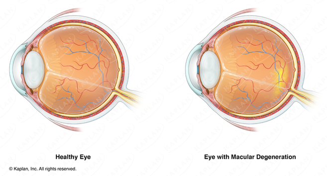 Anatomy of Normal Human Eye and Anatomy of Eye with Macular Degeneration