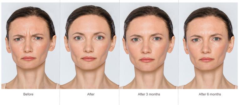 botox compare.jpg