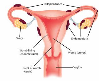 Endometriosis? Curcumin is for you!