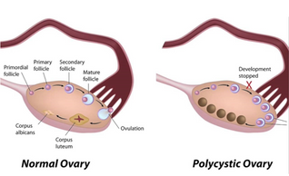 Ovarian Cysts - Let's Talk