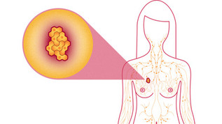 Using Natural Progesterone to Prevent Breast Cancer