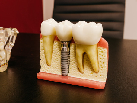 How Do Dental Implants Stay In Place?