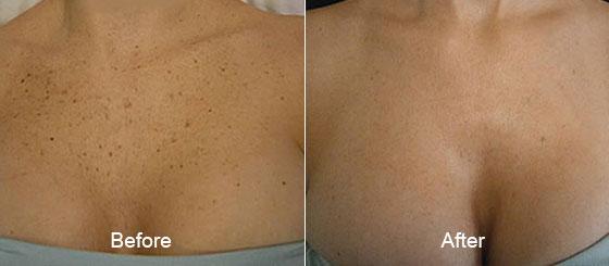 ipl-photofacial-before-after-thomas-young-md-pennsylvania-full-2