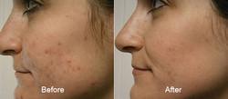 ipl-photofacial-before-after-thomas-young-md-pennsylvania-full-3