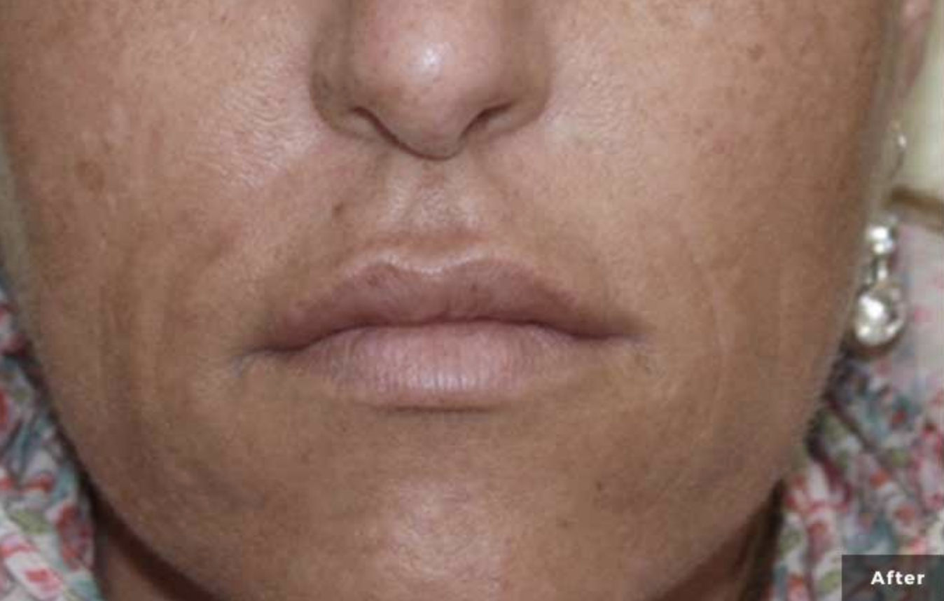 Secret RF - Microneedling
