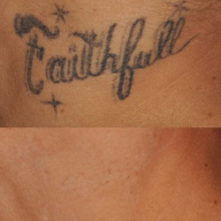 enlighten_tattoo_removal_feature2