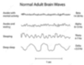 Neuro Resilience - Neuro Feedback