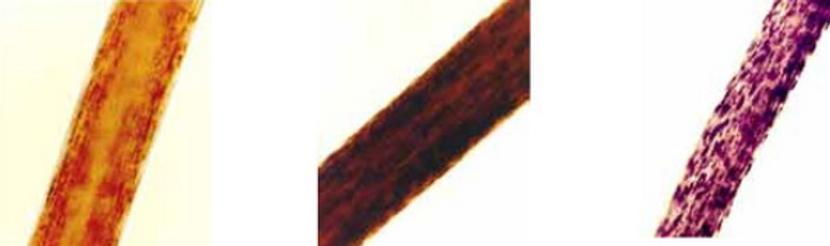 hair strands undr a microscope
