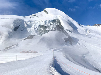 What to expect when you go summerskiing