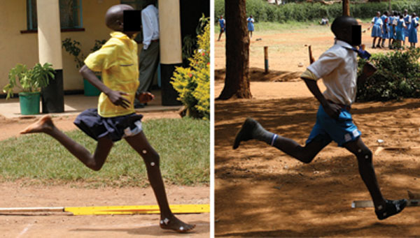 Side-by-side comparison images of two runners. One, a girl on the left, runs without shoes and with a forefoot striking gait. The other, a boy on the right, runs in running shoes and with a heel-strike gait.