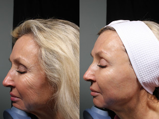 5-MM-Side-Ultherapy1.jpg