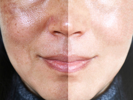Solutions for Hyperpigmentation