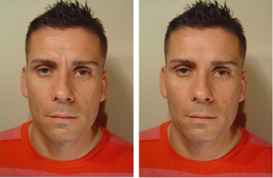 This male patient received Botox for his forehead and glabellar (between the eyebrow) lines