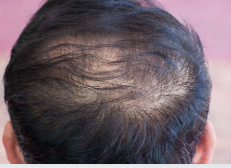 4 Tips to Prevent Hair Loss
