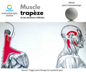 Muscle trapèze et ses douleurs référées