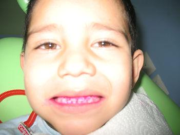 Control de Placa dento Bacteriana