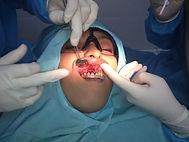 Cirugia de Encias Sangrantes