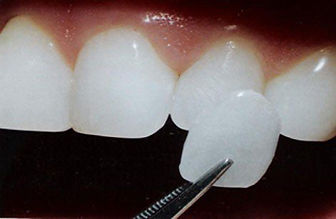 Caries de Porcelana