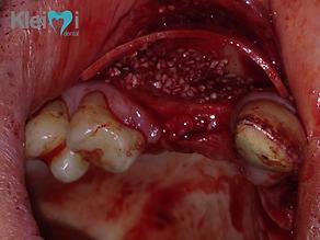 Cirugia de Injerto de Hueso