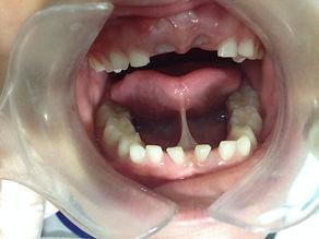 Cirugia de Frenillo Lingual