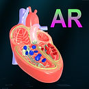 AR Heart - An incredible pump.jpg