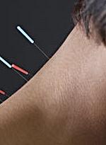 estudos cientificos sobre acupuntura e infertilidade