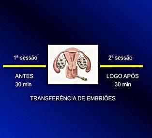acupuntura na transferência e embriões