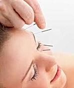 mecanismo de ação da acupuntura a infertilidade