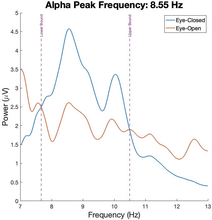 Power spectral densities of the eye-closed and eye-open resting states are plotted.