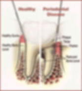 VIP,Стоматология, краснодар, Лечение Кариеса ,Виниры ,Коронки без металла ,Имплантация ,Отбеливание зубов ,Ортодонтия ,Хирургия  ,Эндодонтия  Лечения МИКРОСКОПОМ, Лечения ЛАЗЕРОМ