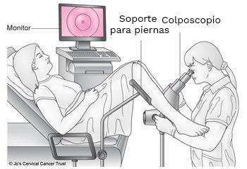 Colposcopía, como se realiza una colposcopía