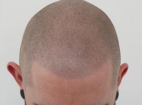 Haarpigmentierung Berlin Ergebniss