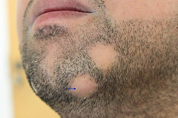 Alopecia areta unter dem Kinn Haarpigmentierung