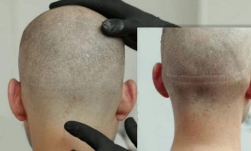 Haarpigmentierug Berlin Narbe