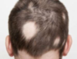 Haarpigmentierung bei Alopecia areata