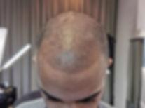 Haarpigmentierung in Perfektion