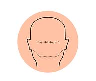 Haarpigmentierung Berlin Narben kaschieren