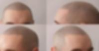 Fertige Haarpigmentierung Modern Man Hair Berlin