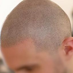 Fertige Haarpigmentierung