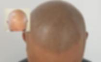 Haarpigmentierug Berlin Ergebnisse
