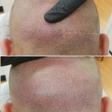Haarpigmentierung Narbe Kascheren