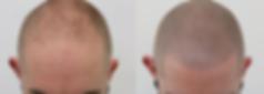 Fertige Haarpigmentierung vorhrnachher