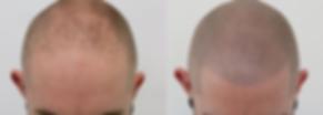 Haarpigmentierung Berlin